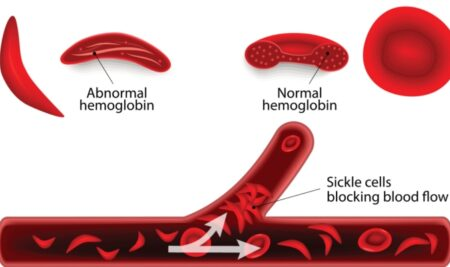 Sickle cell crisis – Role of Family & Nurses